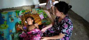 Kedua Orang Tua Pasrah,Vonis Dokter Sulkarnawang Menderita Tumor Delapan Bulan